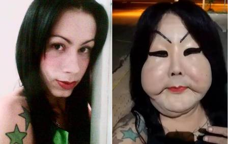 jojo olivera before and after applying 250ml of what is believed to be synthetic silicone to the face